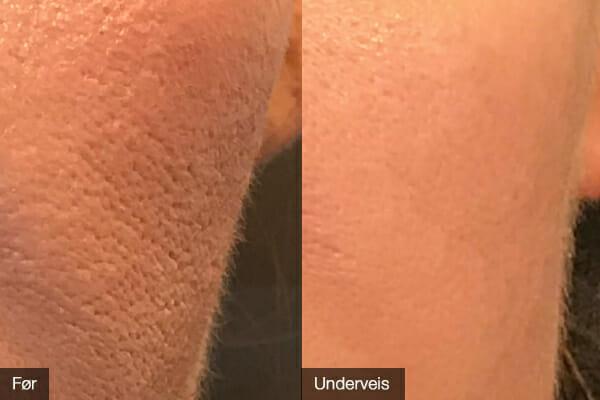 Samme person som på bildene til venstre, men med fokus på et mindre område. OBS! Førbildet er med makeup og etterbildet er uten makeup.